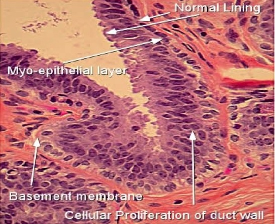 Intraductal papilloma with focal usual ductal hyperplasia Specificații