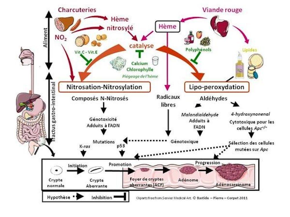 Cancer colon viande. Remuscler son ventre grâce à la chrononutrition   Santé Magazine