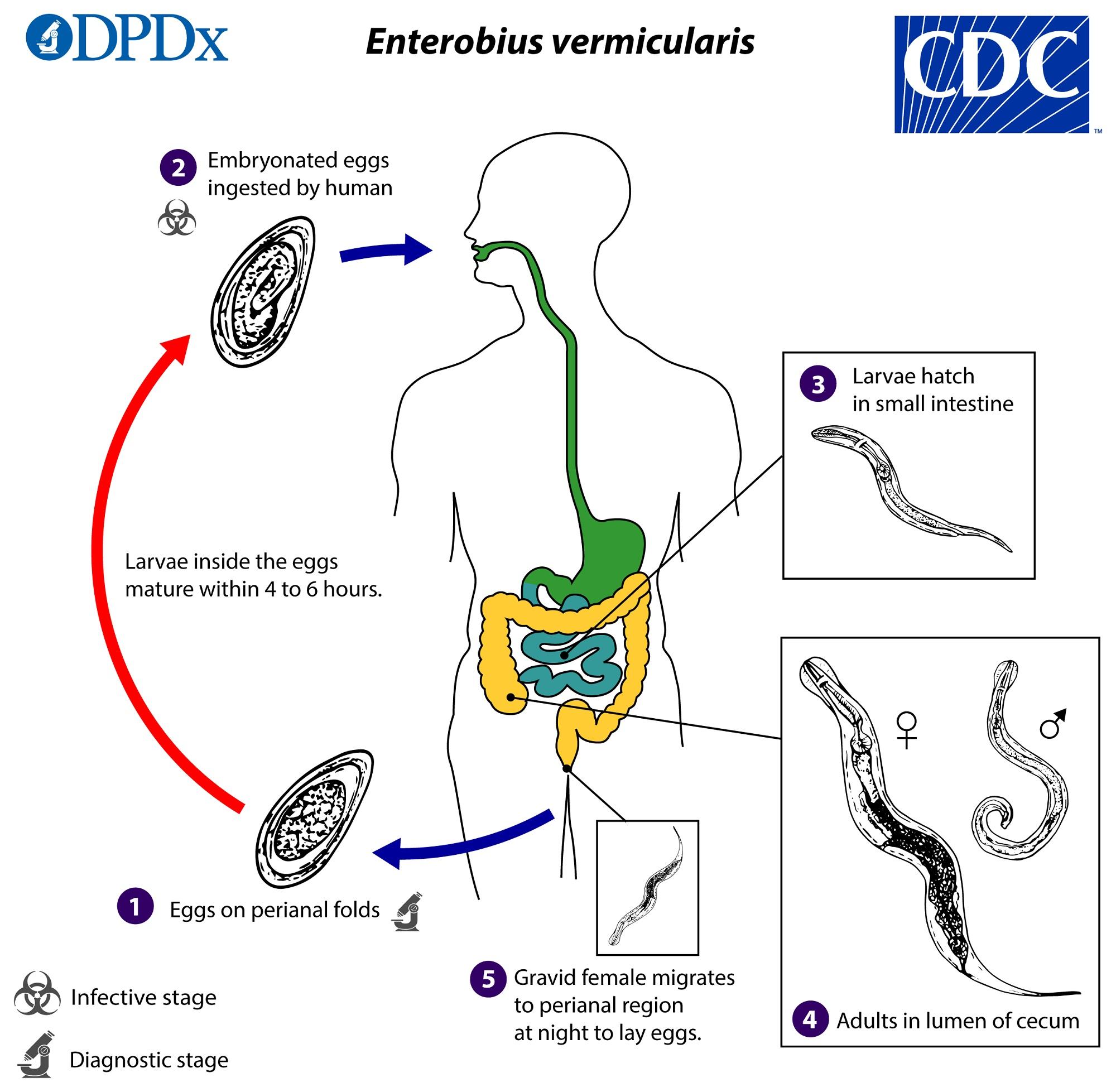 enterobiasis pathophysiology)