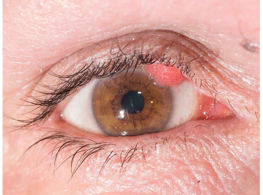 Negi genitali (condiloame, veruci) – cauze, diagnostic, tratament | Ginecologie | Ghid de boli