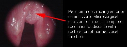 papillomatosis in the larynx