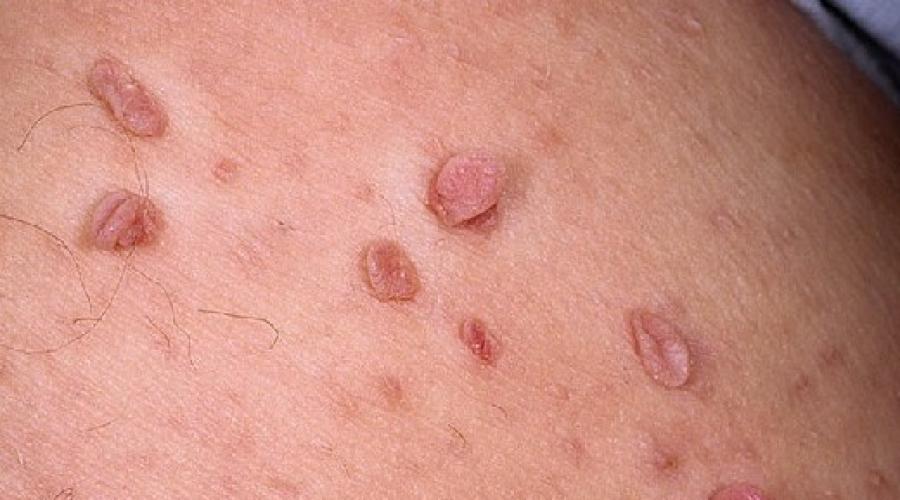 papiloame care sunt cauzele și tratamentul)