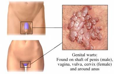 rău de la verucile genitale