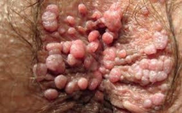Penyakit hpv kelamin - Cauzele verucilor genitale