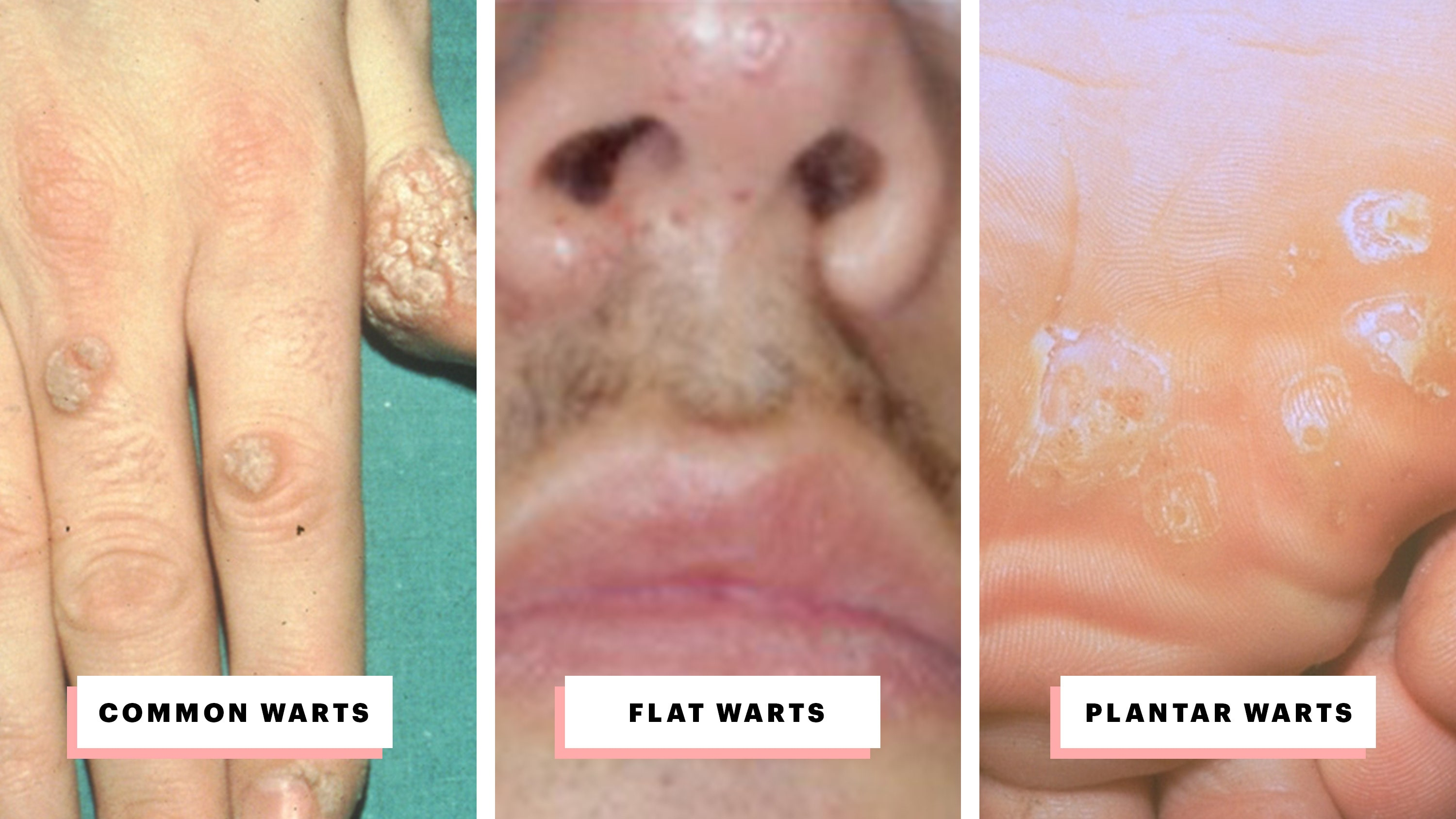 hpv causes warts on face)