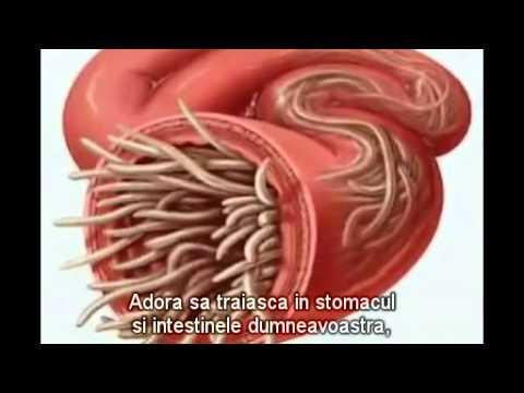 viermi intestinali limbrici simptome
