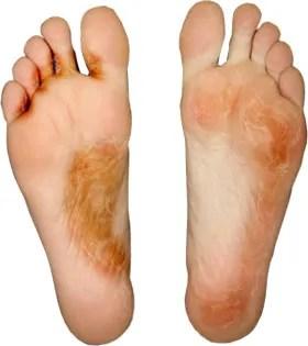 vezicule între tratarea degetelor de la picioare