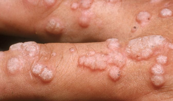 Hpv warts dangerous What are common HPV symptoms? detoxifiere in brasov