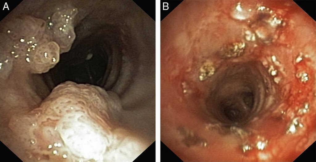 Romanian Journal of Rhinology - , Inverted papilloma in nasal cavity Papilloma sinus cavity