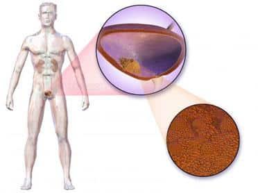 cancer de vezica | despre cancer