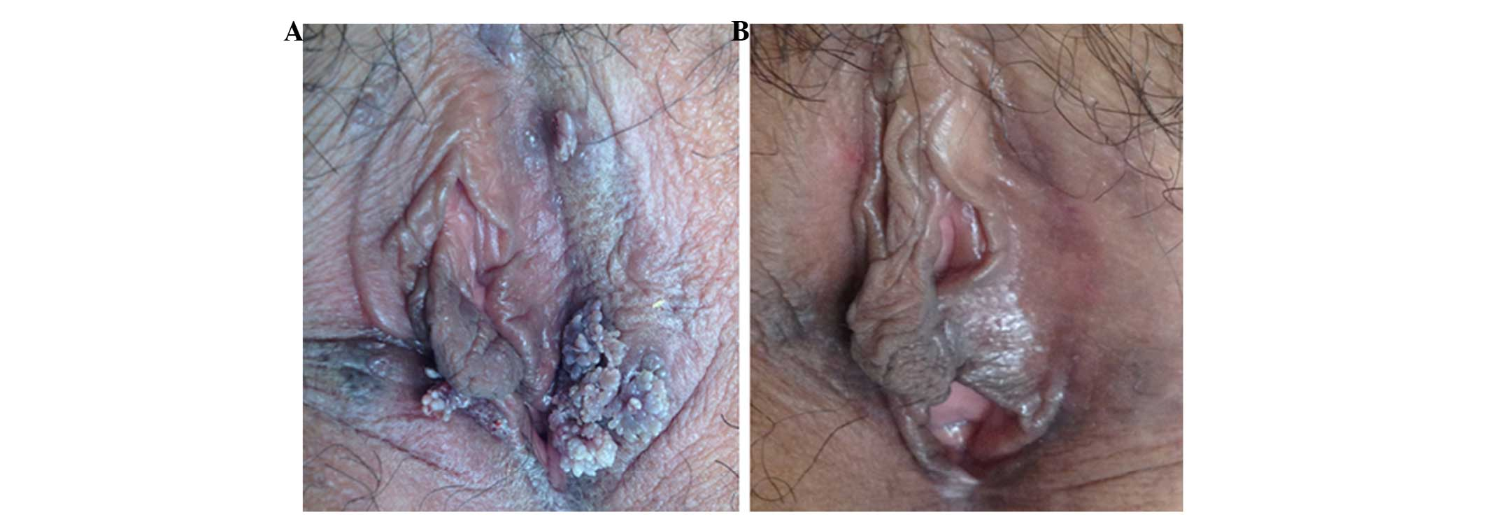 Condyloma acuminatum in pregnancy, Condyloma acuminata during pregnancy