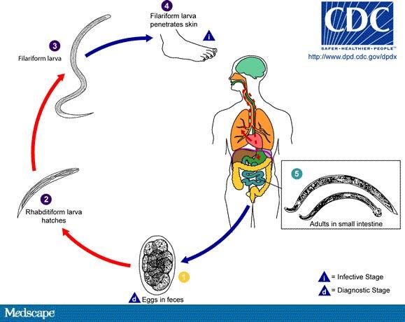 Hepatic fluke : structura și ciclul de viață | Competent despre sănătate pe iLive