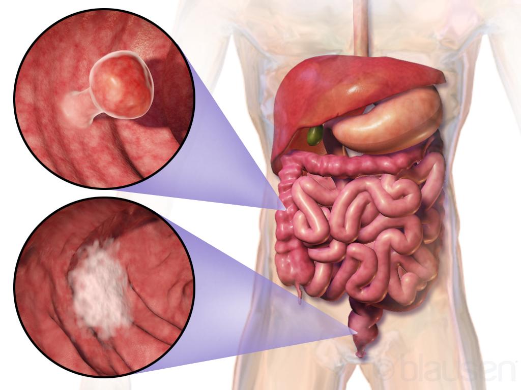 aggressive cancer in colon