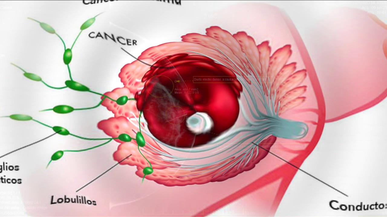 que es cancer invasivo de mama