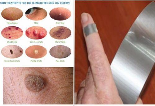 hpv strains causing warts