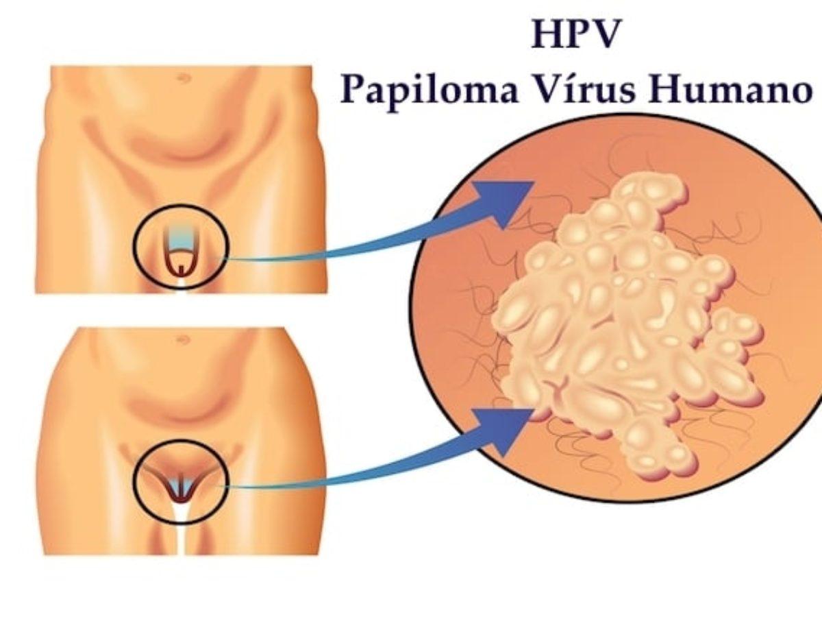 quel symptome pour le papillomavirus
