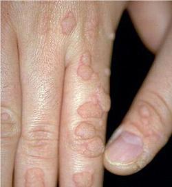 papillomavirus chez l homme traitement)