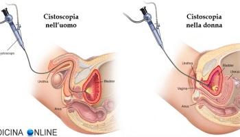 intervento papilloma vescicale