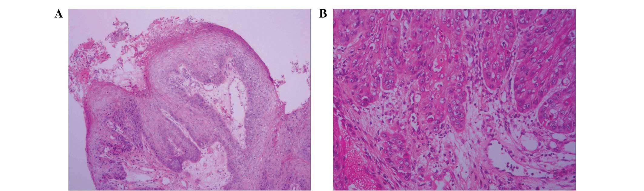 respiratory papillomatosis histology