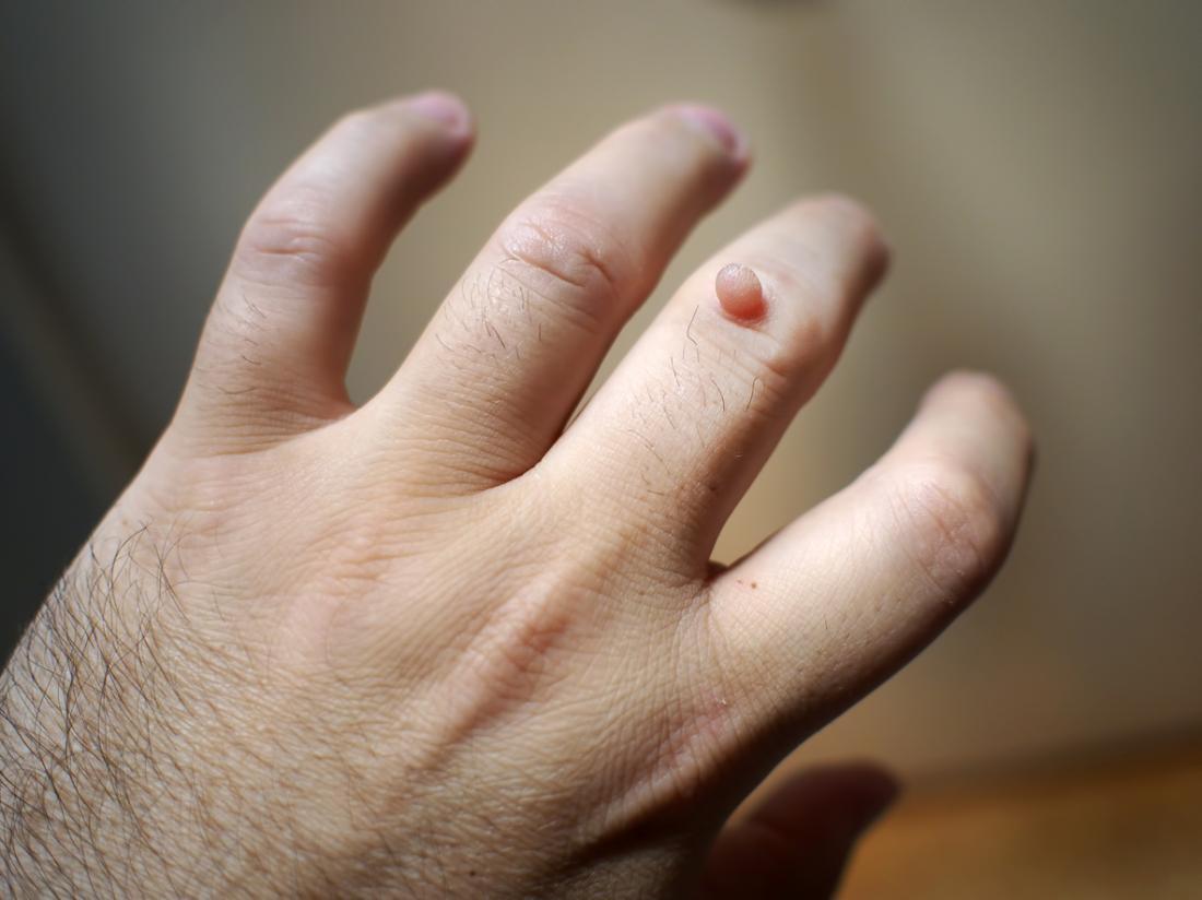 warts on hands patient uk