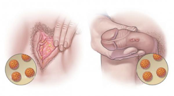papiloma genital femenino tratamiento sintomas del cancer de colon hombres
