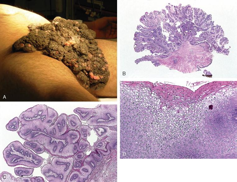 condyloma acuminata lesion