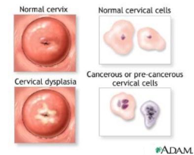 Papiloma virus humano verrugas genitales, Papilom și prostatită