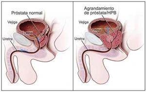 cancer de prostata a nivel mundial