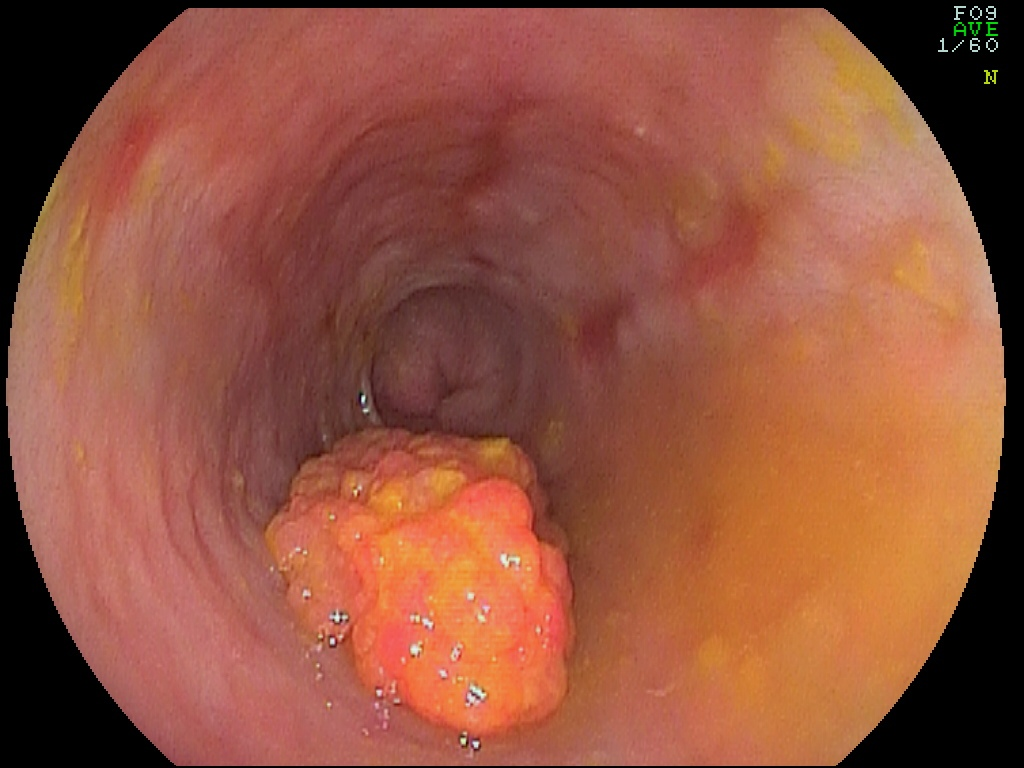 Cancer gastrico intestinal e difuso