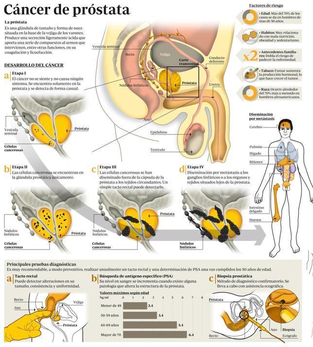 cancer de prostata fase 4)