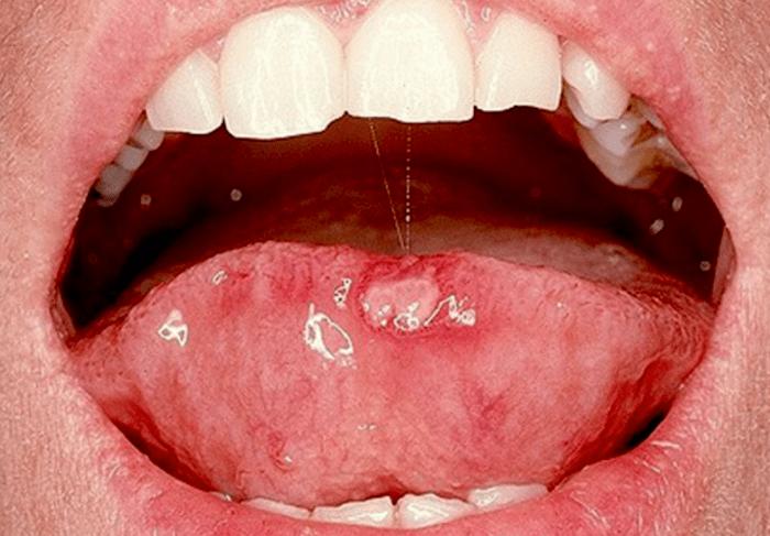 Papiloma boca dolor. Virus del papiloma humano boca imagenes
