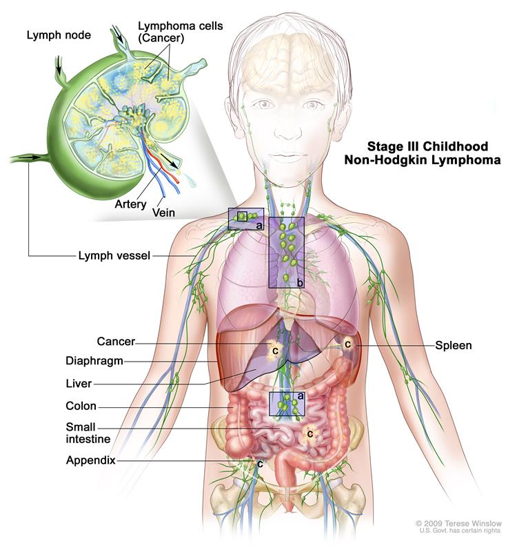 Cancer after hodgkins disease, Cancer treatment hodgkin s lymphoma
