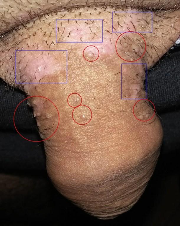 papillomavirus humain homme)