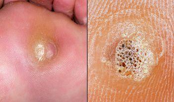 wart foot black dots