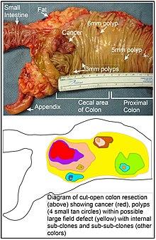 cancer la colon diagnostic)
