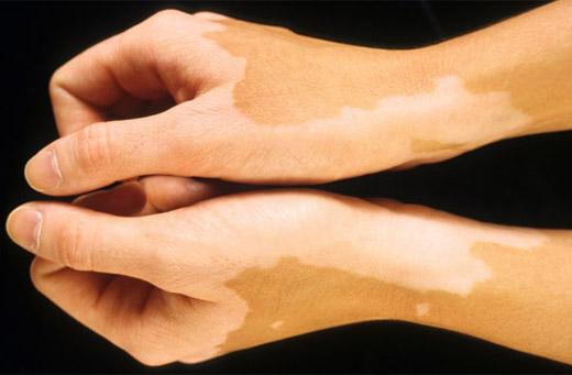 creșterea pielii condilomului)