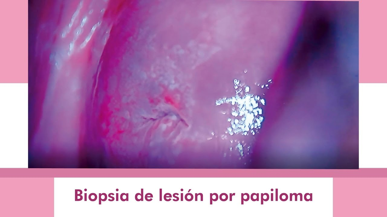 Hpv impfung impfschema. HPV: Preventing Cervical Cancer cheloo la