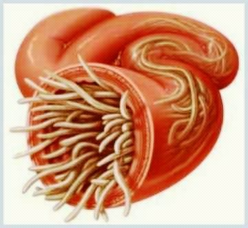 viermi intestinal simptome