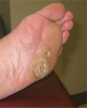 Symptoms of hpv papilloma, Papilloma virus symptoms - Wart treatment germany