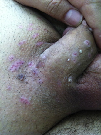 hpv warts recurrence)