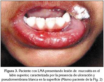 Oxisize trateaza varicele Parasitos oxiuros sintomas en ninos