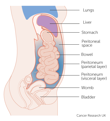 peritoneal cancer in males)