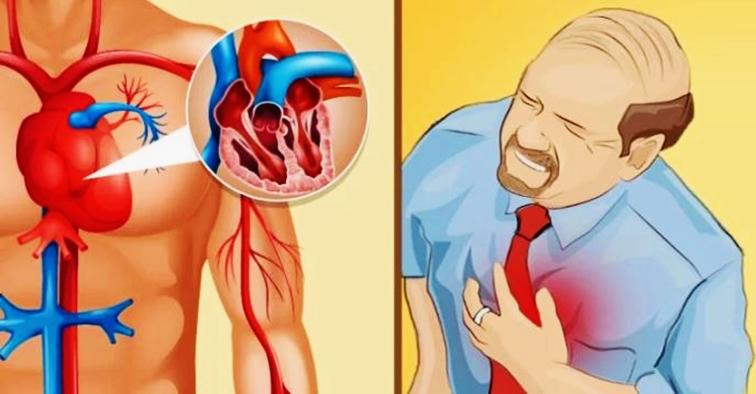 semne de atac de cord