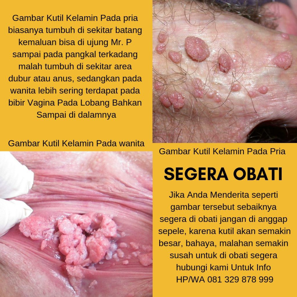 hpv et cancer colorectal papilloma virus probabilita tumore