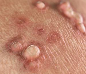 hpv virus entfernen