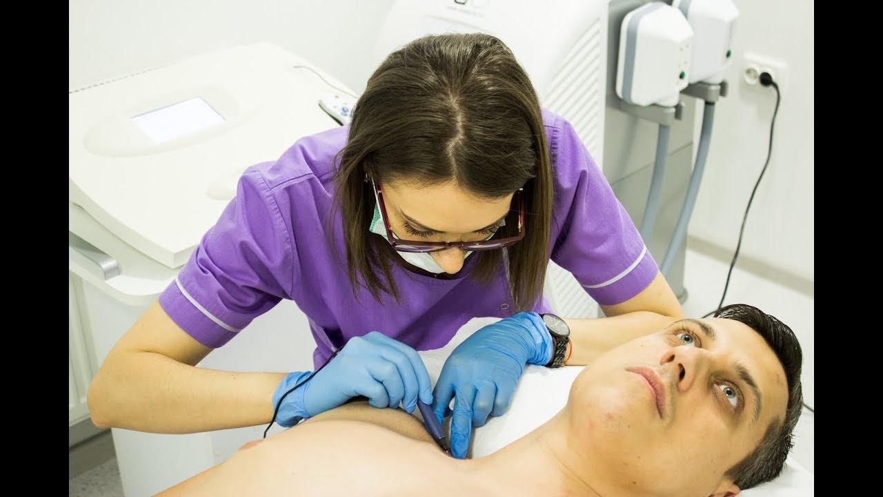 tratamentul papilomelor cutanate