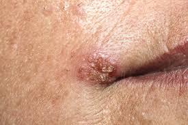 papiloma virus mujer sintomas)