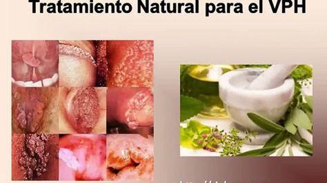virus papiloma tratamiento natural)