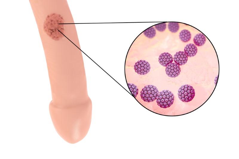 herpes hpv difference cancer vezica urinara stadiul 4
