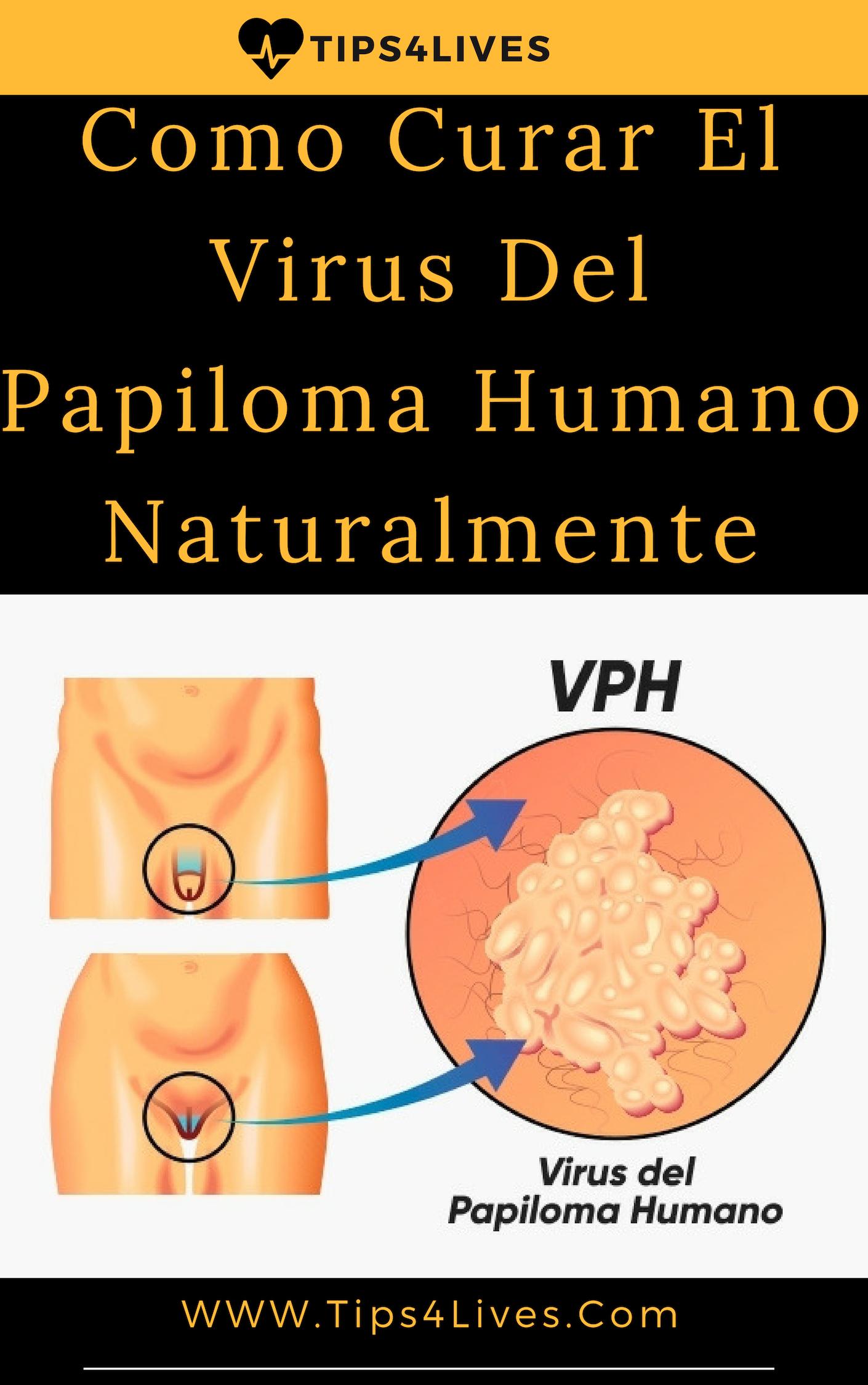 cum se elimină virusul papilomului